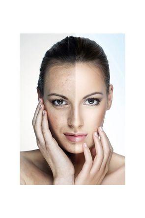 Webkit   Skin Activ